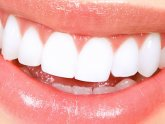 Best teeth whitening home remedies