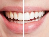 Cost Laser Teeth whitening