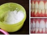 Fast way to whiten teeth at home