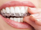Home Teeth Whitening kits
