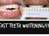How to whiten teeth fast?
