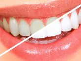 How to whitening teeth at home safely?