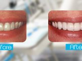 Laser Teeth whitening cost treatment