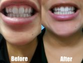 Professional teeth whitening at home