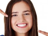 Professional Teeth Whitening Brisbane