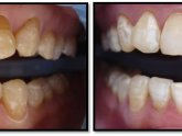 Professional Teeth Whitening Reviews