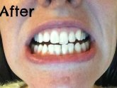 Smile Clinic Teeth Whitening Reviews