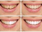 Take home teeth whitening