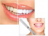 Teeth whitening gel Reviews