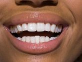 Teeth whitening strips Australia