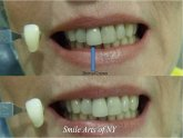Teeth Zoom Whitening