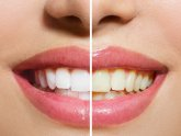 Ways to naturally whiten teeth at Home
