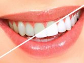 Ways to whiten teeth at home fast