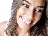 Which teeth whitening strips work best?