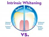 Whitening strips sensitive teeth