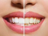 Whitening Teeth kits