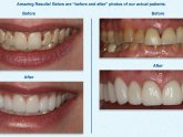 Zoom Teeth Whitening Utah