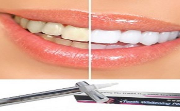 Teeth whitening gel Pen Review