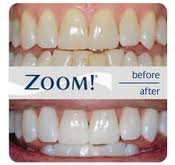 Zoom teeth whitening before and after 1
